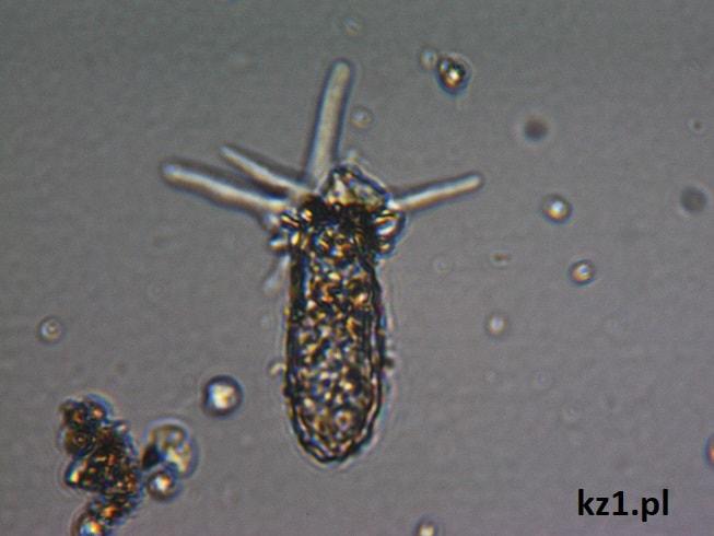 ameba difflugia oblonga pod mikroskopem