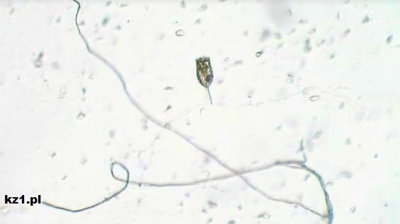 woda z jeziora pod mikroskopem