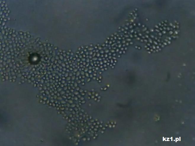 drożdże saccharomycesboulardii mikroskop