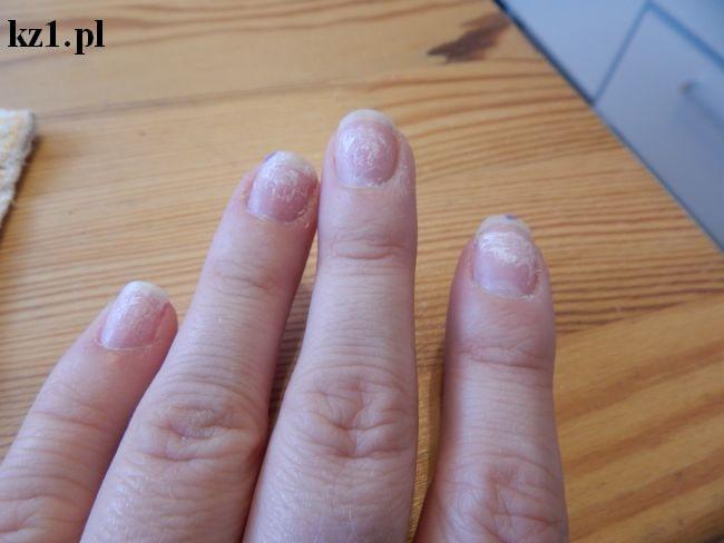 paznokcie po hybrydach